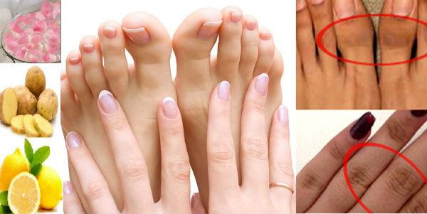 dark-knuckles